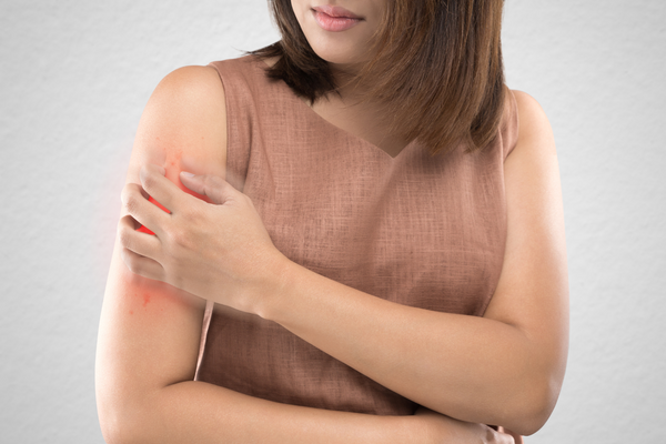Health Conditions Linked to Psoriasis