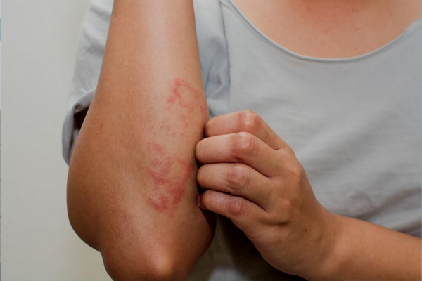 Eczema Vs. Psoriasis: How To Tell The Difference