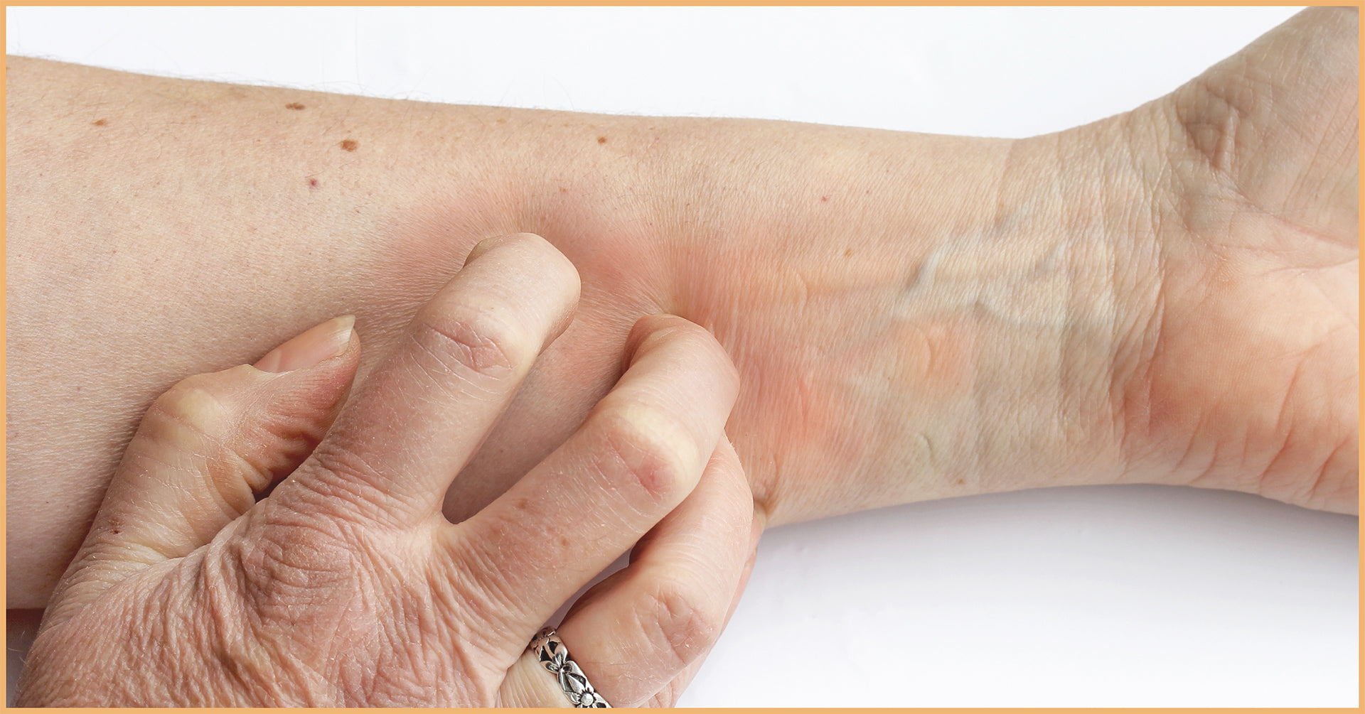 Excessive Dry Skin and Itchy Xerosis