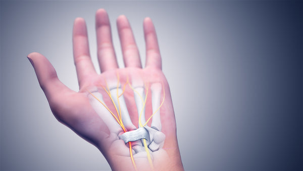 3D representation of Carpal Tunnel