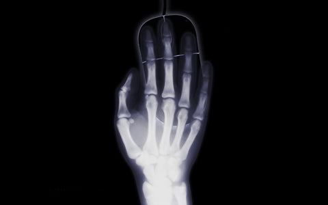 X-Ray of Hand with Mouse