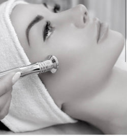 6 Forty Minute Microdermabrasion $515