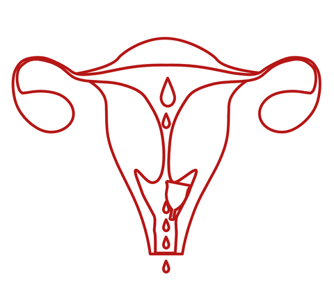 Menstrual cup placement