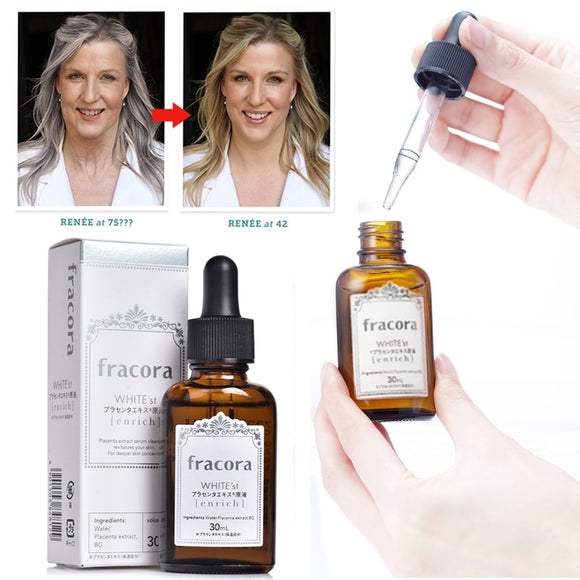 Fracora - White'st Placenta Serum 30ml Face Whitening Essence for Brighter Skin