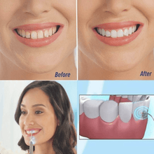 Load image into Gallery viewer, Ultrasonic Tooth Stain Remover