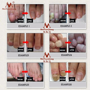 nail fungal treatment