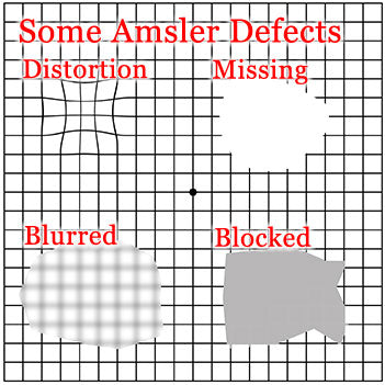 What do I need an Amsler grid for?