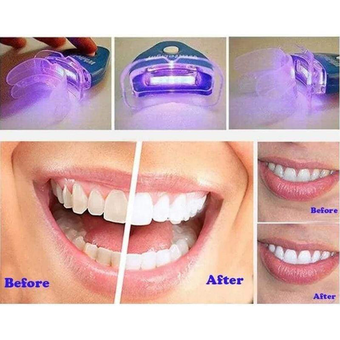 Teeth Whitening Kit - Home Use.