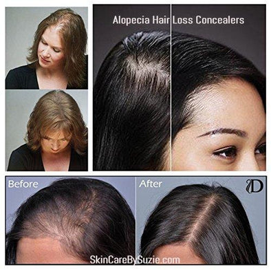 Hair Loss Concealer and Hair Building Fibers For Alopecia and Baldness - Skin Care By Suzie