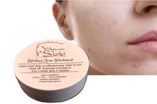 New ! Healing Acne Treatment by Skin Care By Suzie