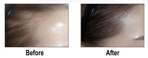 Hair Loss Concealer for hairlines