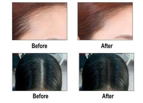 Hair Loss Concealer for women