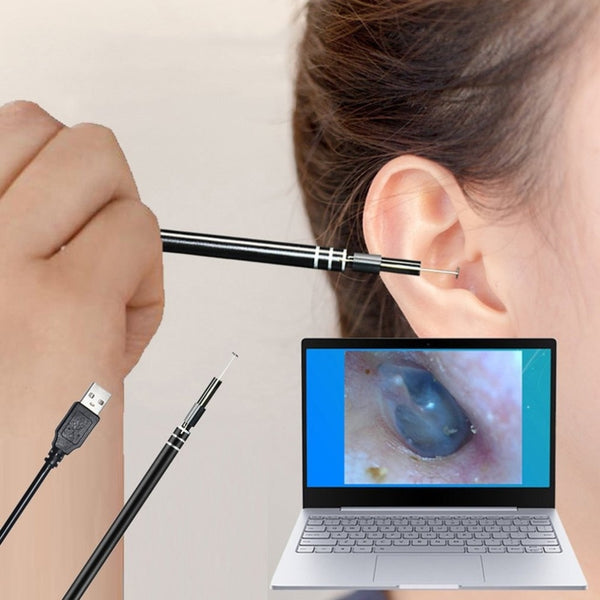 In-Ear Cleaning Endoscope - easeable.com