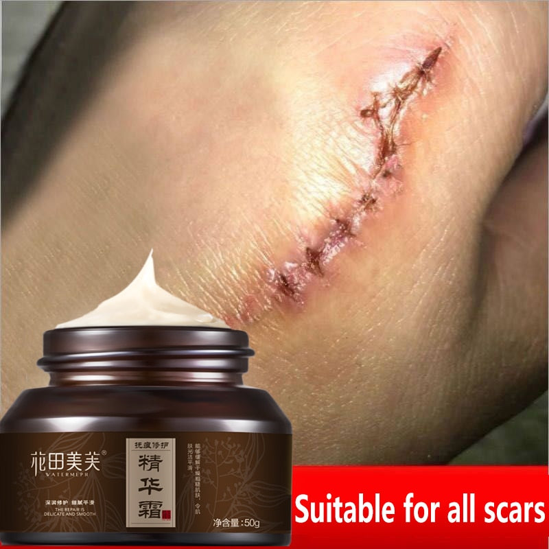 Scar Cream that Helps Improve the Skin