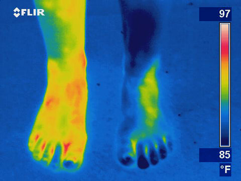 Infrared camera circulation issues in legs