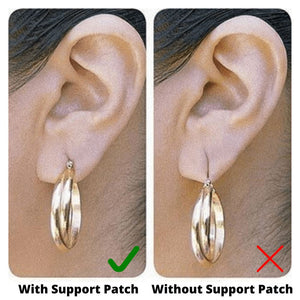 Instant Support Patches for Torn Earlobes - Wonderbacks
