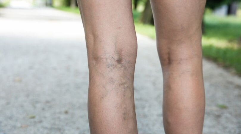 circulation problems - spider veins