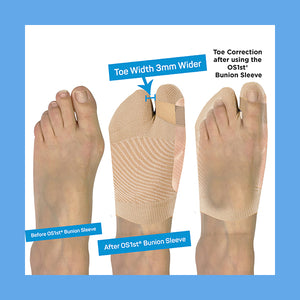 HV3 Bunion Bracing Sleeve - Large/Extra Large