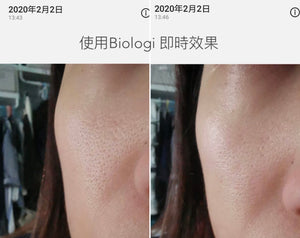BIOLOGI【Bf】強效補水修復活性精華液 Hydration & Restore Face and Body Serum