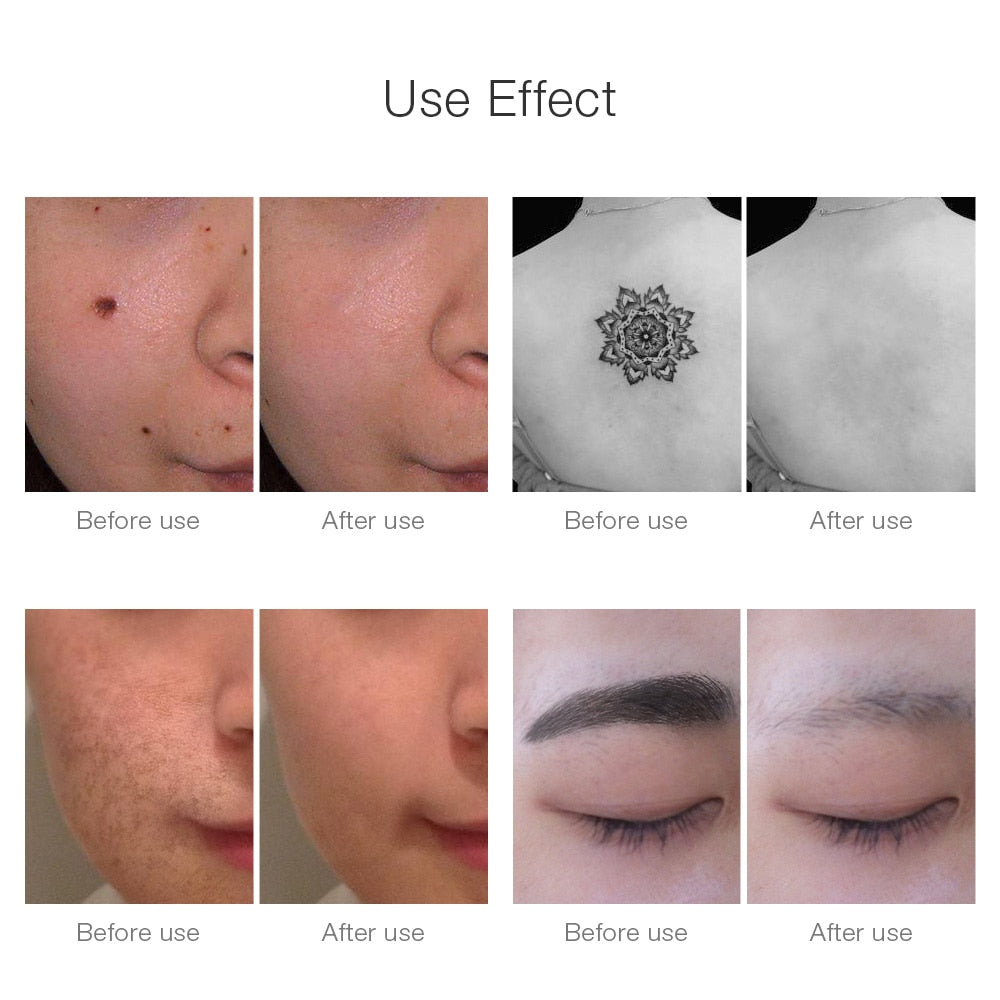 Tattoo, Acne, Scar, Mole Removal Laser Pen - Effective & Painless