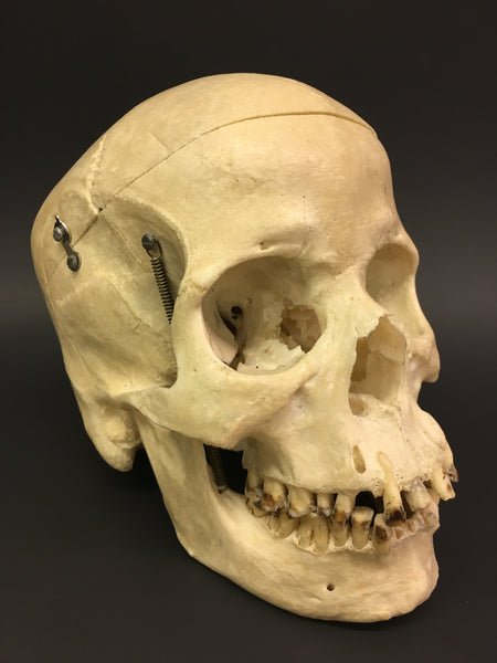 Authentic Human Skull - Medical Teaching Specimen #1