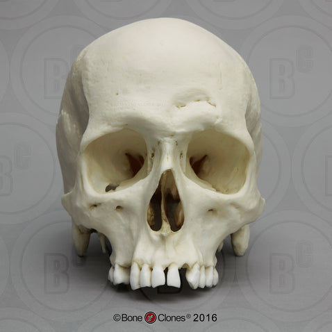 Forensic Skull: Cast Replica Human Male Skull with Hammer blows - Homo sapiens #BC-217