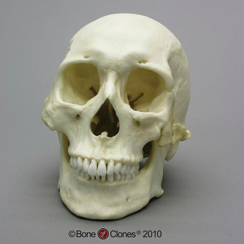 Cast Replica Human Skull with Healed Trauma - Homo sapiens #BC-303