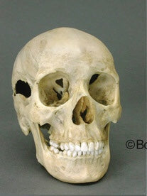 Forensic Skull: Cast Replica Human Female Skull with Multiple Gunshot Wounds - Homo sapiens #BC-202