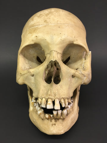Authentic Human Skull - Medical Teaching Specimen #2