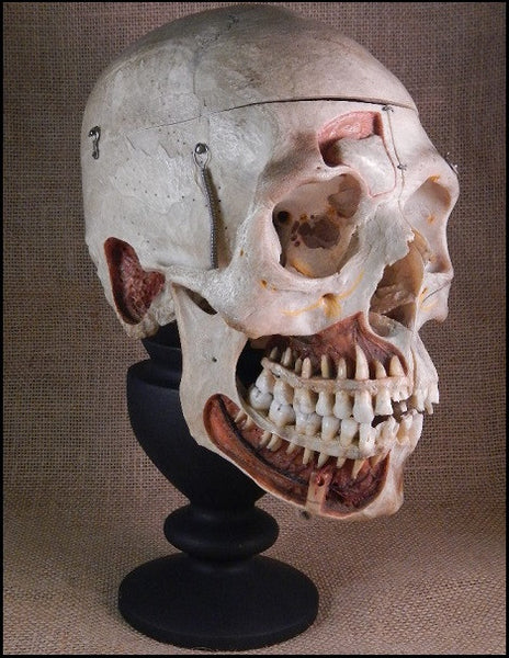Authentic Human Demonstration Skull in Glass Dome - DH1
