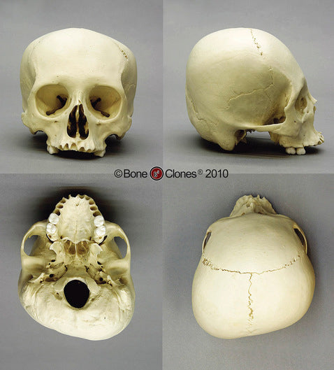 Cast Replica Human Female Cradle Boarded Skull - Homo sapiens #BC-222