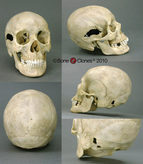 Cast Replica Human Female Skull with Multiple Gunshot Wounds - Homo sapiens #BC-202