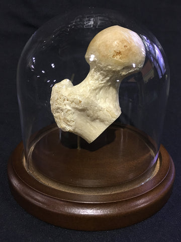 Authentic Human Femur Head in Glass Dome
