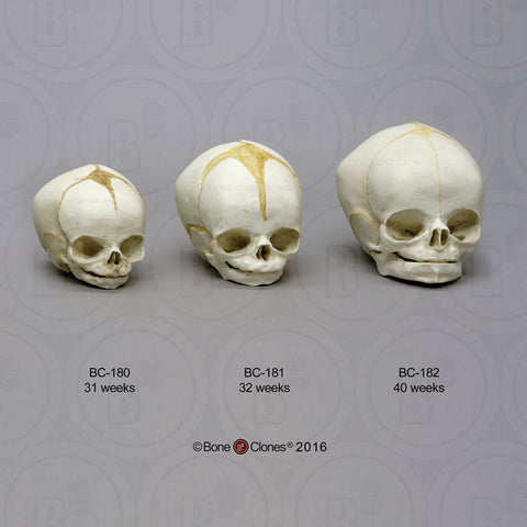 Cast Replica Human Fetal Skulls (set of 3) - Homo sapiens #BC-182-Set