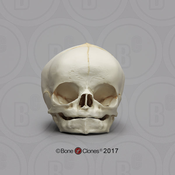 Human Fetal Skulls (set of 3) Cast Replicas - Homo sapiens #BC-182-Set