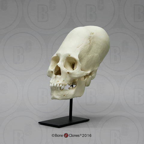 Cast Replica Human Skull (Cranial-bound Elongated Peruvian skull) - Homo sapiens #BC-200