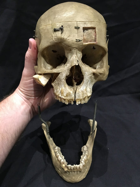 Authentic Human Demonstration Skull in Glass Dome - DH2
