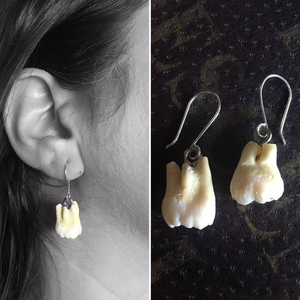 Human Teeth Earrings