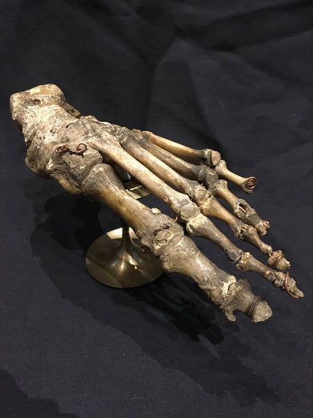 Authentic Human Foot w/ Brass Display