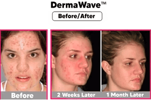 DermaWave™️ Professional LED Therapy Mask Kit
