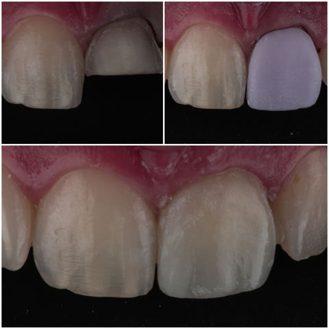 CEREC® Blocks - Disilicato de Litio #14