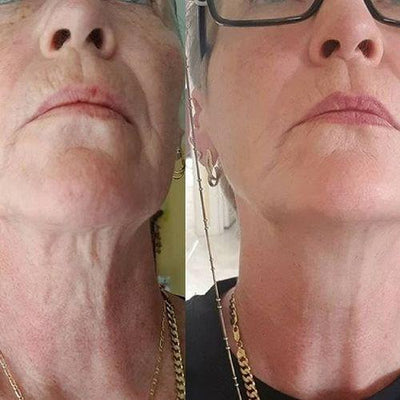 InstaLift™ LED Skin Tightening - Pro Kit