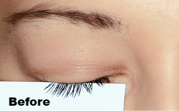 Before Picture: REALASH Eyelash Enhancer