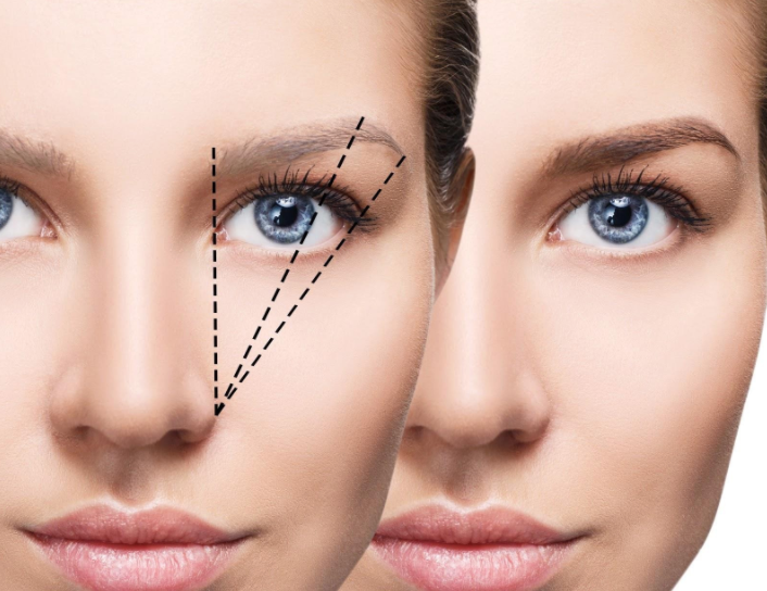 Brow Lamination - What is it?