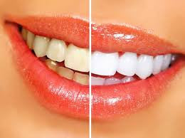 Four Types of Teeth and How They Function