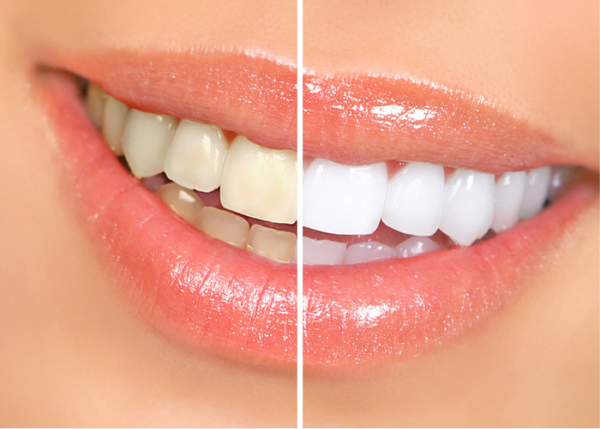 teeth-yellow-vs-white