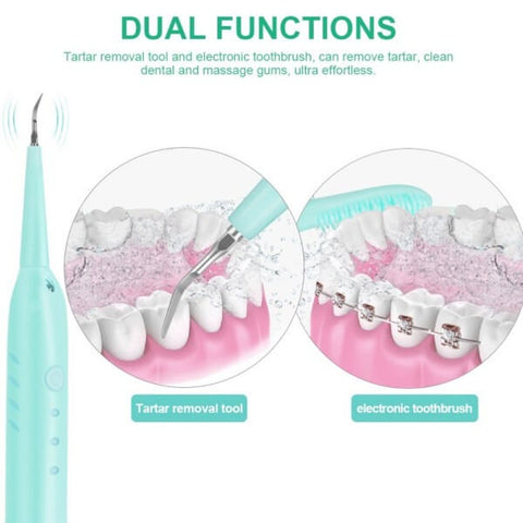 Does Electric Dental Calculus Remover Works