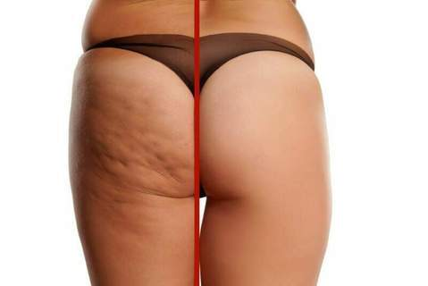 Best Cream To Help Get Rid Of Cellulite & Stretch Marks On You