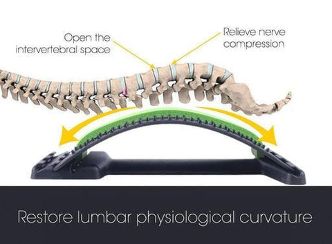 Will Traction Help Pinched Nerve In Lower Back