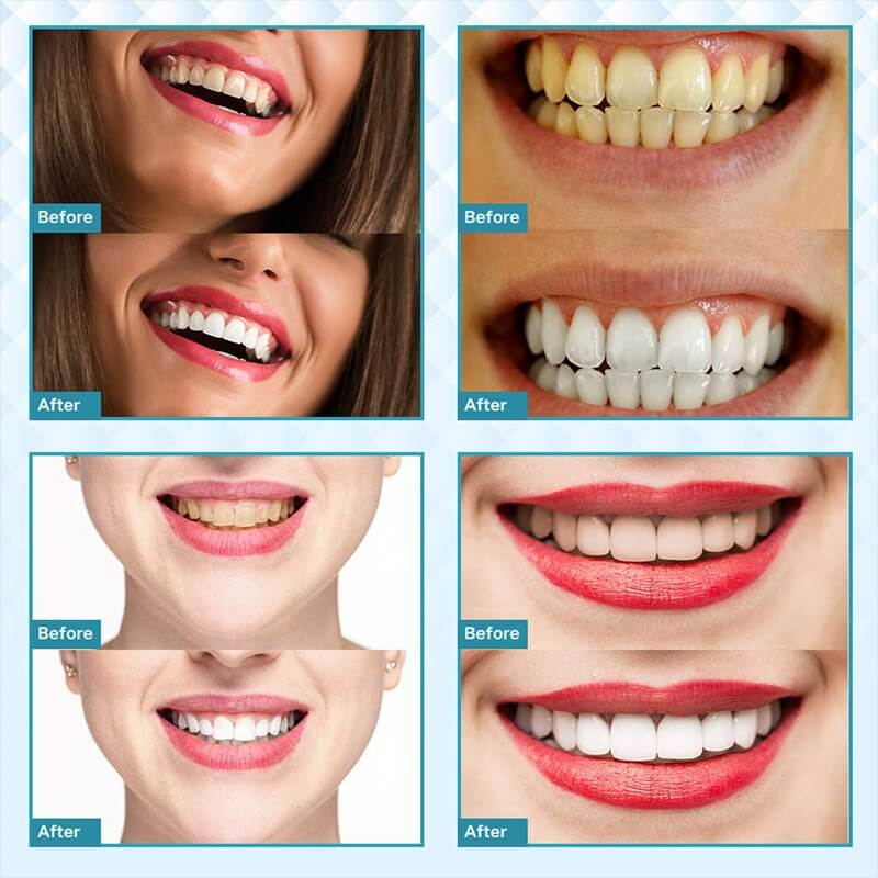 How Much Does It Cost To Get Your Teeth Whitened